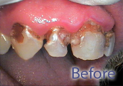 Before dental treatment & crown insertion, West Bridgewater MA dental services, porcelain dental crowns