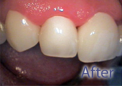 After dental treatment & crown insertion, West Bridgewater MA dental services, porcelain dental crowns