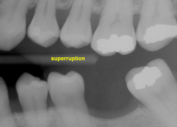 Dental implants, artificial teeth, West Bridgewater MA dental surgery, tooth restoration, southeastern MA oral surgeon