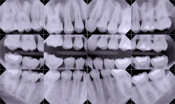 Digital x-rays, safe dental x-rays, dental radiographs, West Bridgewater MA dental services, southeastern MA