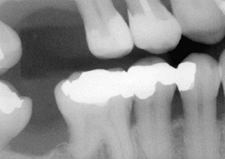 Dental x-rays, West Bridgewater MA dental services, dental diagnostics, dental radiographs, digital x-rays, southeastern MA